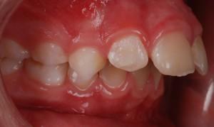 Overjet (Protruding upper front teeth)